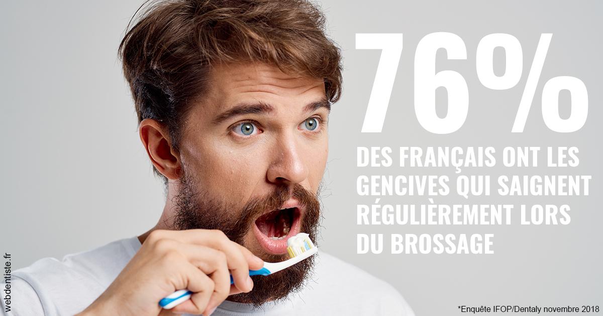 https://www.orthodontie-bruxelles-gilkens.be/76% des Français 2