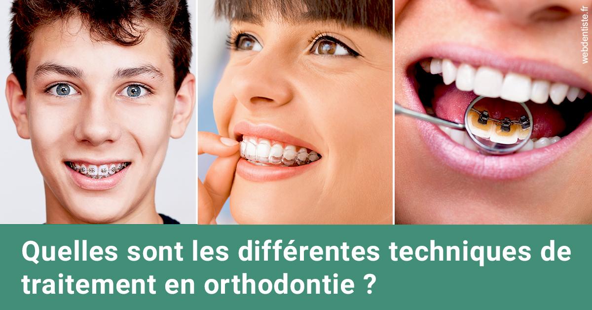 https://www.orthodontie-bruxelles-gilkens.be/Les différentes techniques de traitement 2